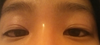 My eyelids relaxed and pictured at an upward angle to show the multiple folds beneath my eye crease.