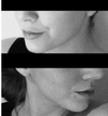 Left Profile (Top) - Right Profile (Bottom) - I know I'm smiling slightly in the top and the angle is slightly different but it looks this way regardless. The right profile's jaw does not have an appealing shape and over all the profile is less 'full' and shapely than the left - from the nostrils to the cheeks and eyebrows, but most significantly the nostrils and jaw.