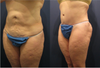 Tummy Tuck Revision Before and After Photos