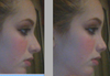 Picture on left is my natural nose. The picture on the right is the nose I would like to have.