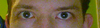 For comparison, this is my habit of holding my eyes extra-open to try to compensate for the droopiness/asymmetry.