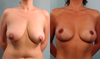 Here is an example of a before and after from RealSelf that I really liked the outcome of. I changed this picture after hearing that what I had previously was not a good example for my shape.