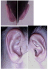 profile and back of ears after otoplasty