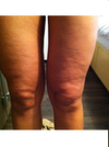 Bumpy skin around knees