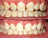 Teeth Whitening Before and After Photos