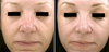 ProFractional Laser Before and After Photos