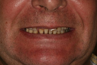 Severely broken upper teeth