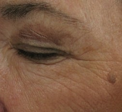 Crows feet and eye wrinkles treated with 1 treatment of Lux 1540 Fractional Laser