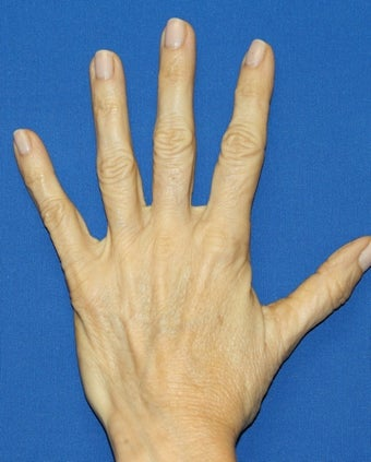 Hand Rejuvenation with Filler