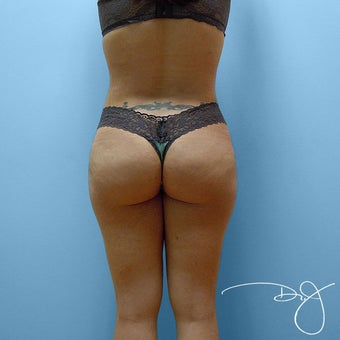 Brazilian Buttock Augmentation