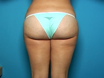 Liposuction of Hips and Outer Thighs