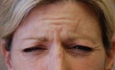 Botox to Forehead and Frown Wrinkles