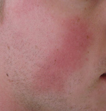 24 year old Male with Rosacea