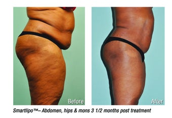 Smartlipo abdomen, hips & mons 3 mos post treatment -61 yr. old