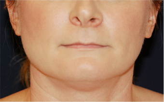 Chin Liposuction - Lower Facial Rejuvenation
