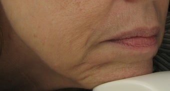 Fraxel re:pair CO2 laser for mouth, lip, and jowls