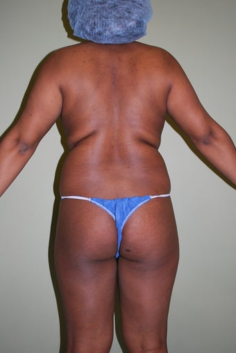 Brazilian butt lift case