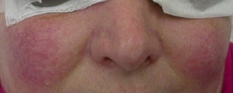 50 year old Female Treated for Rosacea and Facial Veins