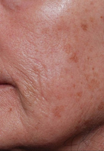 Female treated for Sunspots/Photoaging