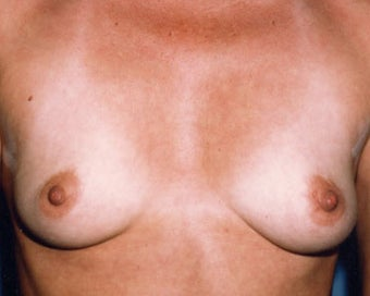 Breast Augmentation Achieves Fullness