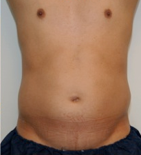 Male Liposuction Before and After - 3 Months