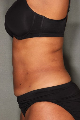 54 Year Old Female Treated for UnWanted Fat With SmartLipo and Vaser Laser High Deffinition