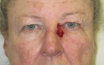 Eyelid and cheek basal cell carcinoma