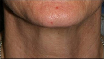 55 Year old female with aging neck due to neck bands.  She doesn't want a surgical neck lift