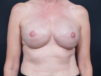 51 Year Old Feamale for Breast Reconstruction