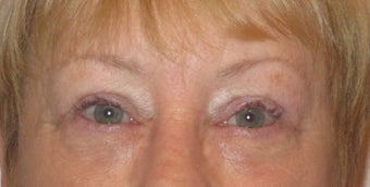 Upper and lower lid blepharoplasty, ptosis repair, chemical peel to lower lids