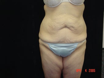 Body Lift with Liposuction of Abdomen, Waist, Flanks
