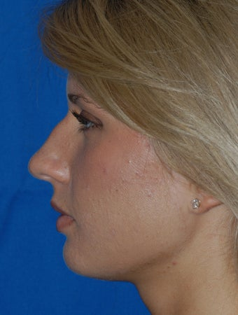 Refinement Rhinoplasty
