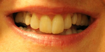 Porcelain Restorations: Bridge, Crowns, and Veneers