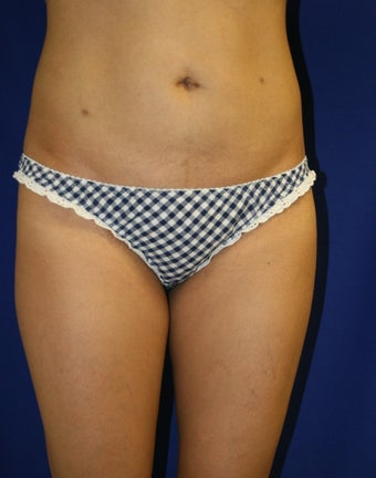 Smartlipo to upper/lower abdomen and hips