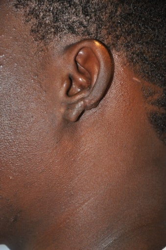 25 year old black male with a recurrent keloid of the ear