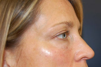 Juvederm dermal filler for upper cheek and under eyes