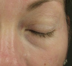 Tear Trough after injection with Restylane