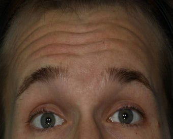 Male treated for Forehead Wrinkles