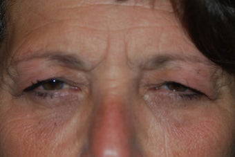 Ptosis Repair with combined Lower Lid Blepharoplasty