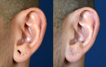 Stretched Earlobe Repair