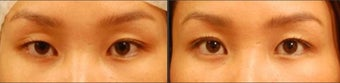 Asian Eyelid Surgery for Uneven Crease