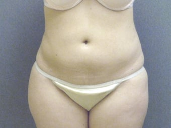 SmartLipo tummy and hip roll - laser assisted