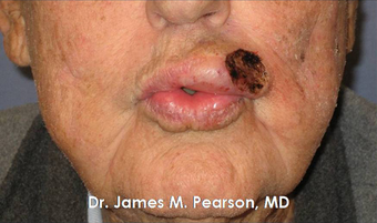 Lip Reconstruction