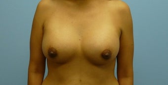 Breast Augmentation 36-year-old female