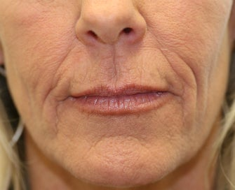 Juvederm in Nasal-labial folds