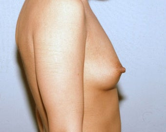 Breast Augmentation for Young Woman