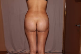 Brazilian Butt Lift/Butt Augmentation