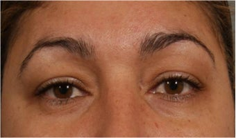 44 Year olf female with sagging of her eye brows and upper eye lids.  She doesn't want surgery