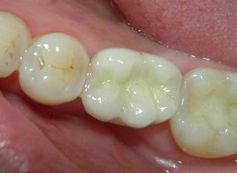 Before and After Case for Dental Implants