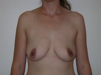 Breast reconstruction with expander and implant